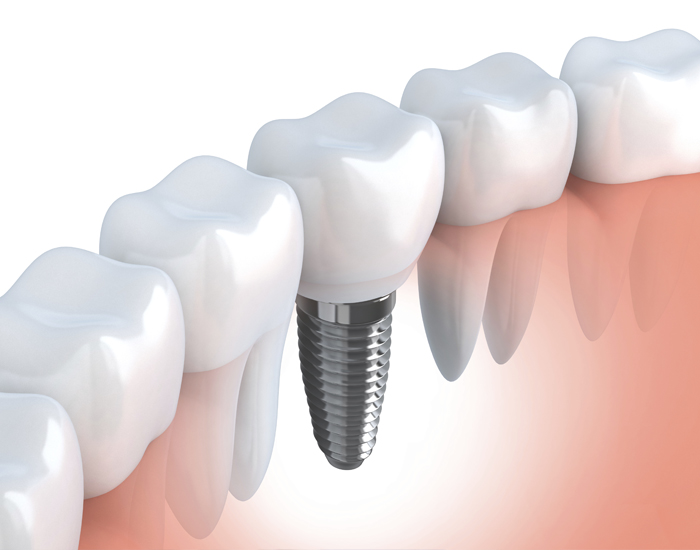 A picture of dental implants
