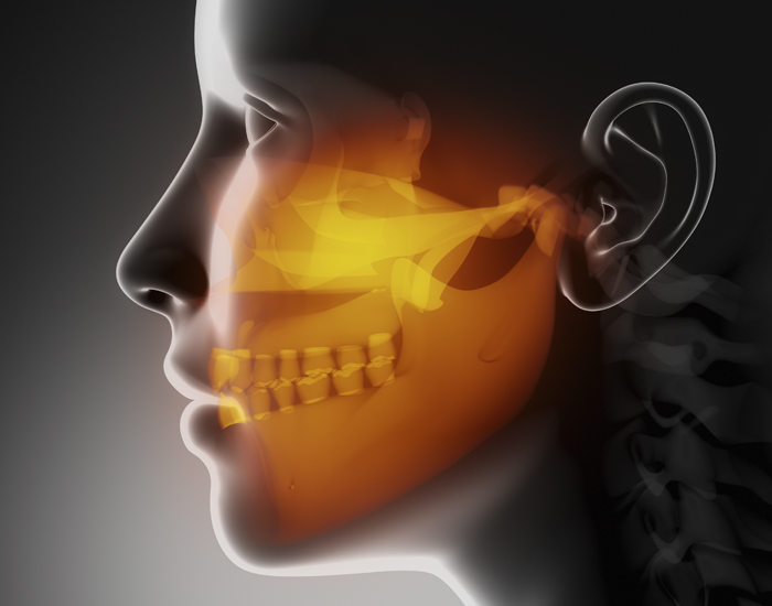3d x-ray image of a person requiring jaw surgery