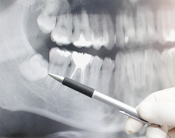 An x-ray of wisdom teeth before oral surgery