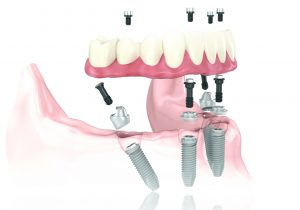 Dental Implants - Tri-State Oral Surgery, Evansville IN